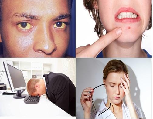 Dấu hiệu của bệnh gan nhiễm mỡ