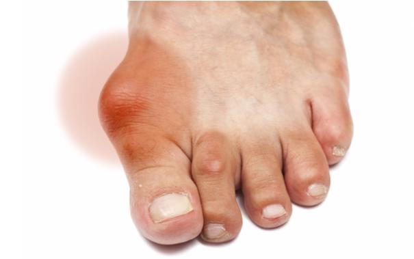 Biểu hiện điển hình của gout là sưng các khớp ngón chân, ngón tay.