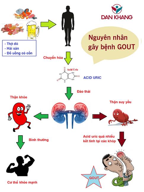 Nguyên nhân dẫn đến bệnh gout
