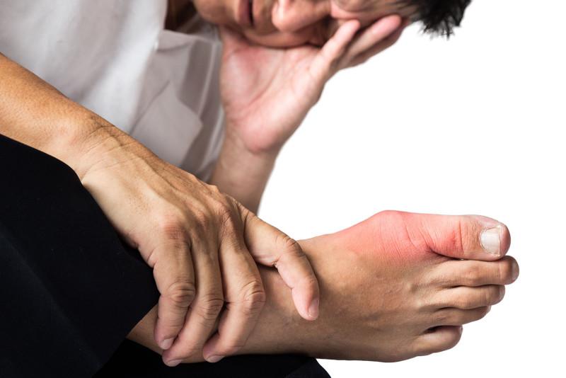 Kiểm soát Gout nhờ biện pháp thiên nhiên