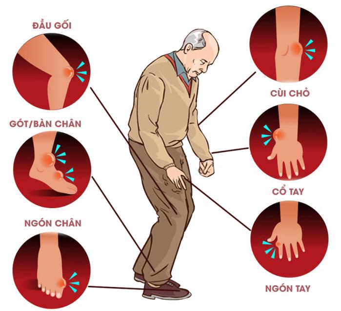 Giải pháp cho người bị Gout lâu năm
