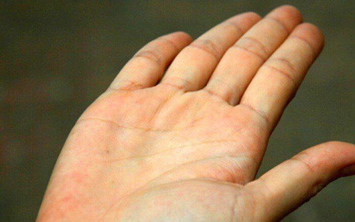 Bị vàng da cũng là biểu hiện để nhận biết bệnh gan nhiễm mỡ