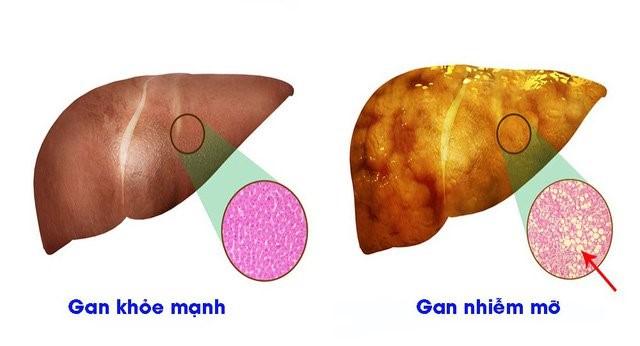 Hình minh họa so sanh bệnh gan nhiễm mỡ