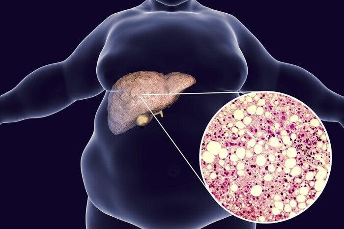 Nguyên nhân gây ra bệnh gan nhiễm mỡ
