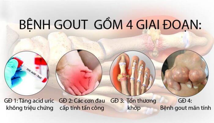 Bệnh Gout là gì? Nguyên nhân, triệu chứng và cách điều trị bệnh