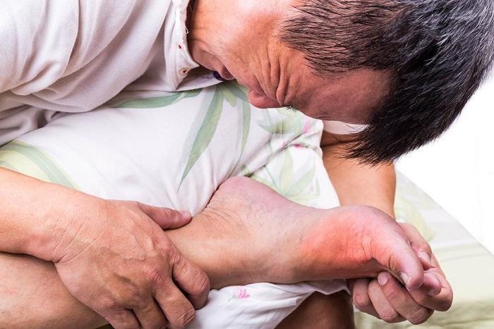 Gout được biết đến là căn bệnh do rối loạn chuyển hóa các chất dinh dưỡng trong cơ thể, làm tăng acid uric trong máu.