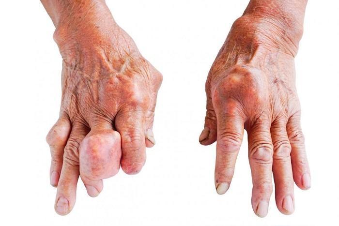 Bệnh Gout gây biến dạng tứ chi, ảnh hưởng lớn đến đời sống của người bệnh