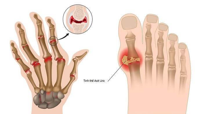 Gout là tình trạng viêm khớp nặng, do acid uric trong cơ thể tăng cao