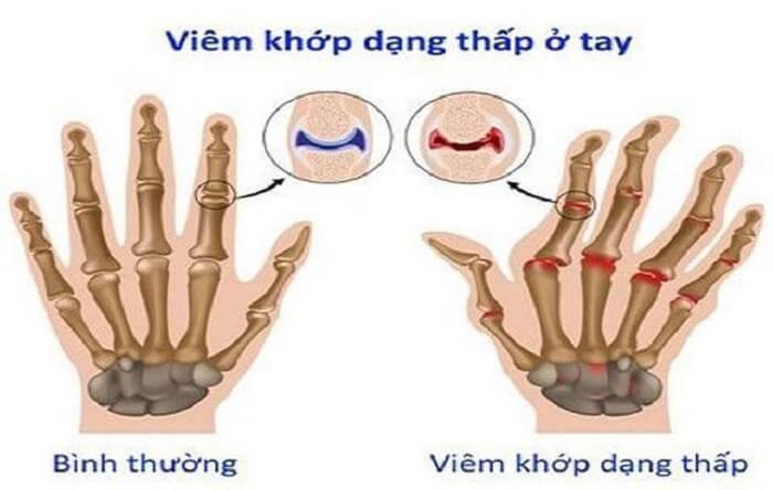 Hình minh họa viêm khớp dạng ở tay