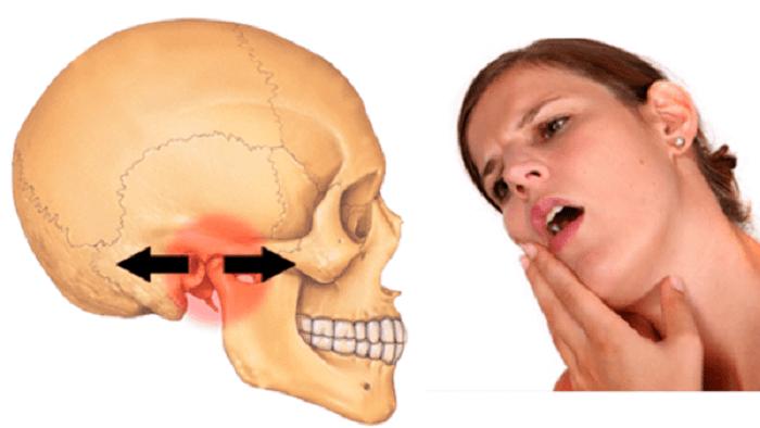 Một số triệu chứng chính của bệnh viêm khớp thái dương hàm