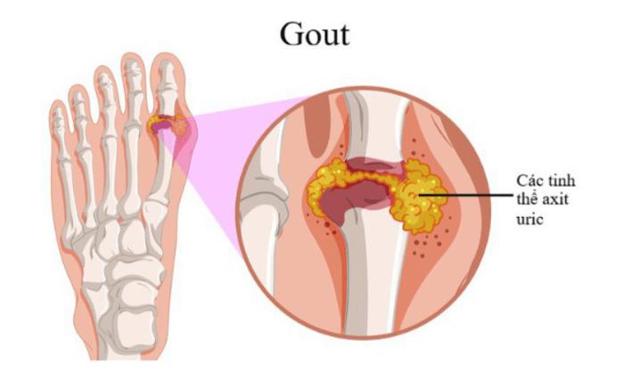 Nguyên nhân chính gây ra bệnh Gout đó là chỉ số Acid Uric trong máu cao