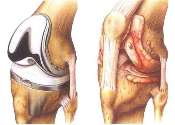Phương pháp phẫu thuật thay khớp gối