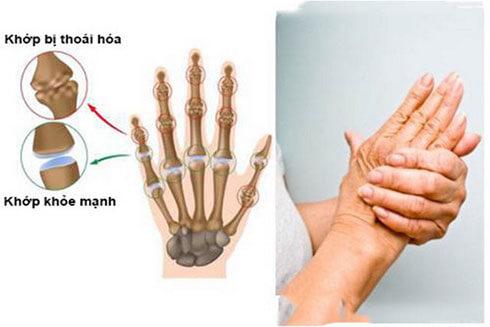 Thoái hóa khớp bàn tay và ngón tay