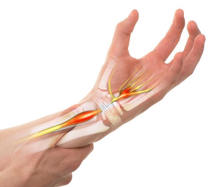 Đau khớp cổ tay khiến người bệnh gặp khó khăn khi hoạt động và sinh hoạt, đặc biệt là đối với người già và trẻ nhỏ.
