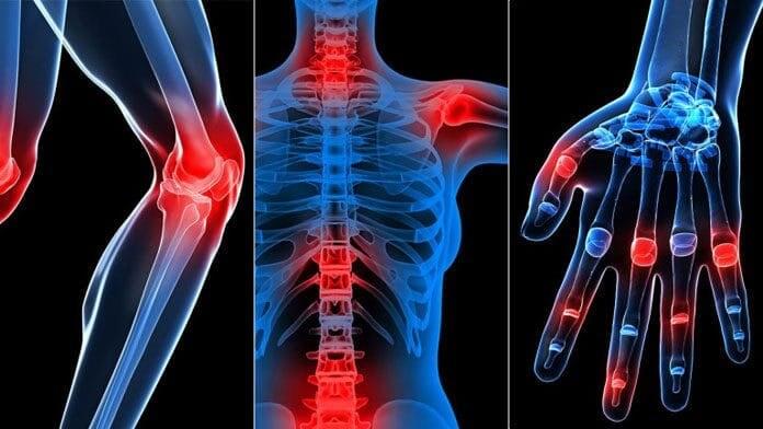 ở nhiều bộ phận xương trên cơ thể