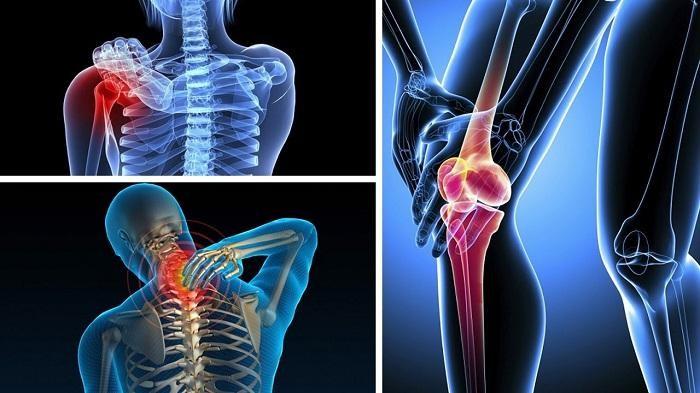 Đau nhức xương khớp dẫn đến hậu quả nghiêm trọng.