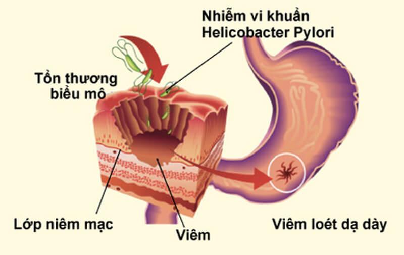 Viêm do vi khuẩn Helicobacter Pylori.