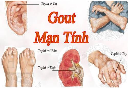 Phân biệt bệnh gout cấp tính, gout mãn tính và những lưu ý điều trị gout