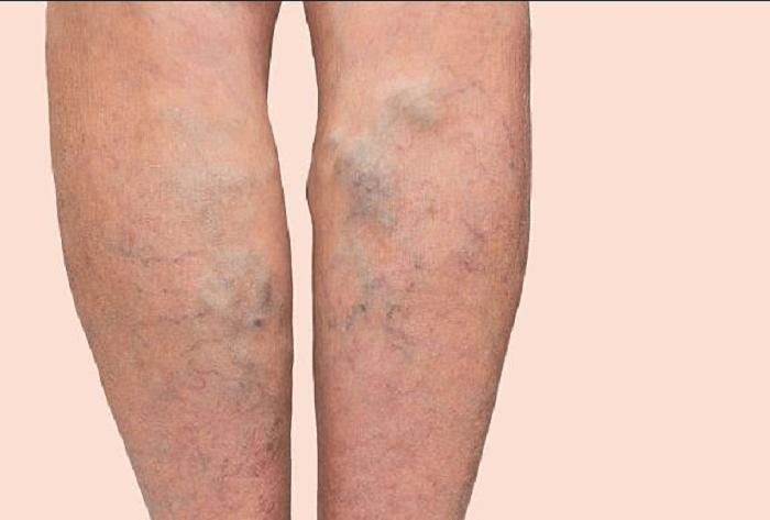 Các tĩnh mạch chân nổi lên trên da bằng mắt thường có thể nhìn thấy