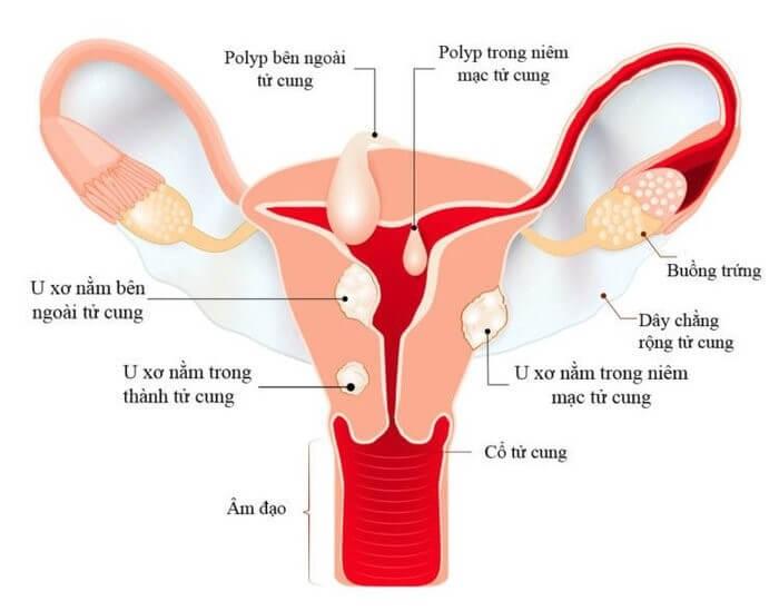 Cấu tạo của tử cung và vị trí thường gặp của u xơ