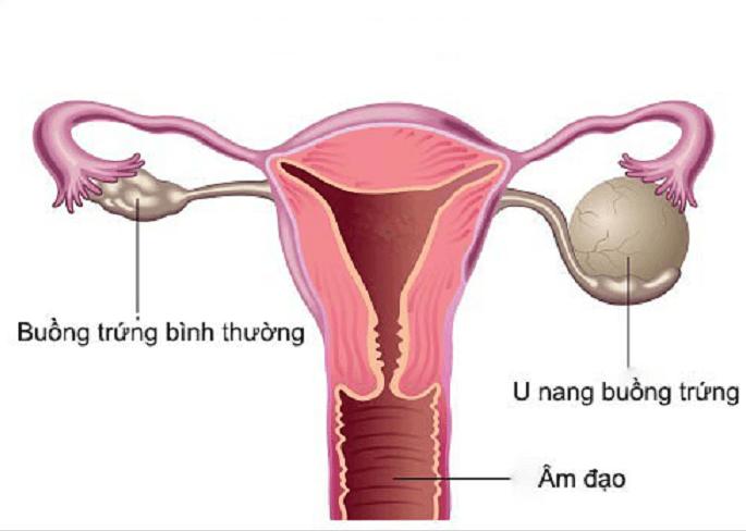 Hình ảnh minh họa -U nang buồng trứng