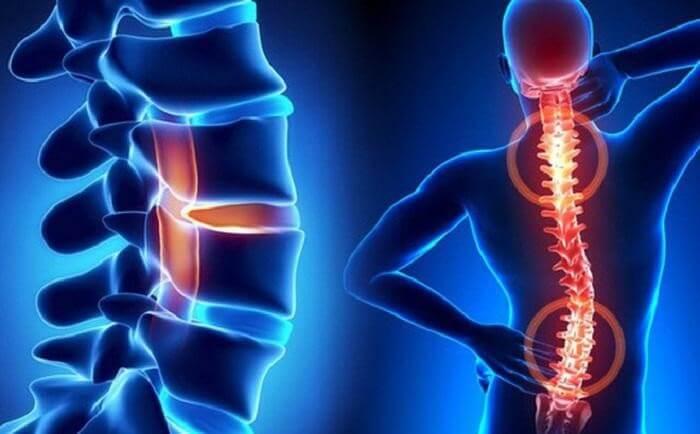 Thoái hóa đốt sống lưng gây ra những cơn đau cho người bệnh