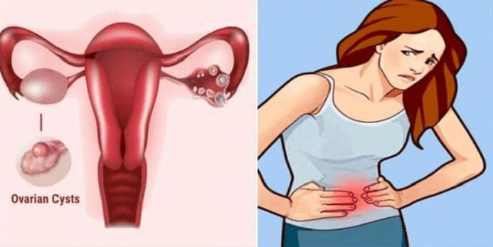 U nang buồng trứng trái thường gây đau vùng bụng dưới