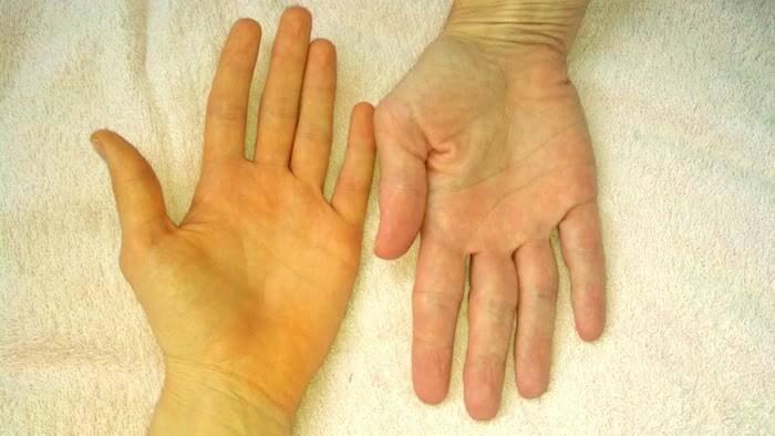 Vàng da là dấu hiệu cho thấy bạn bị suy giảm chức năng gan
