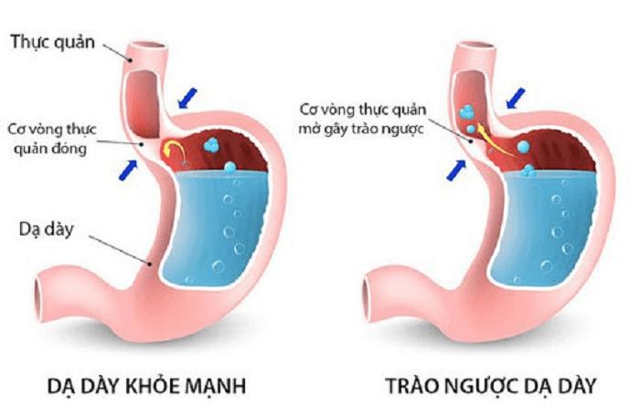 Bệnh trào ngược dạ dày là gì?