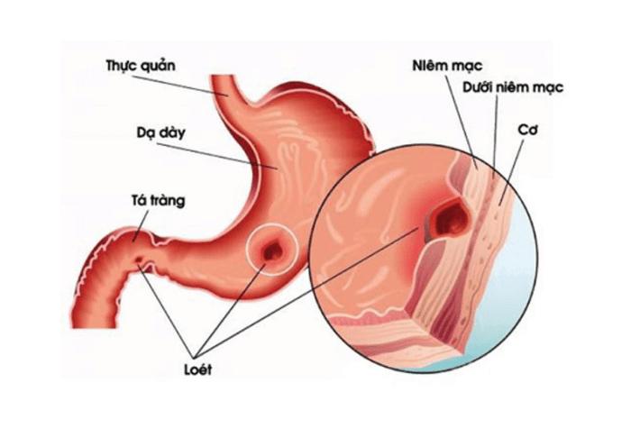 Cấu tạo của dạ dày và vị trí dễ bị đau dạ dày