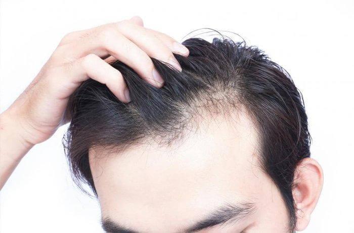 Hói đầu – nỗi ám ảnh của cánh mày râu
