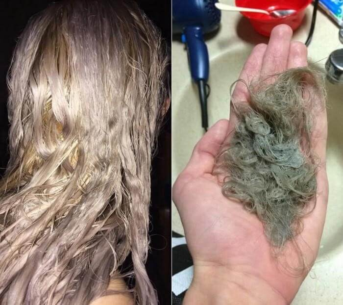 Nhuộm tóc, tẩy tóc, tạo kiểu nhiều khiến tóc tổn thương và rụng tóc