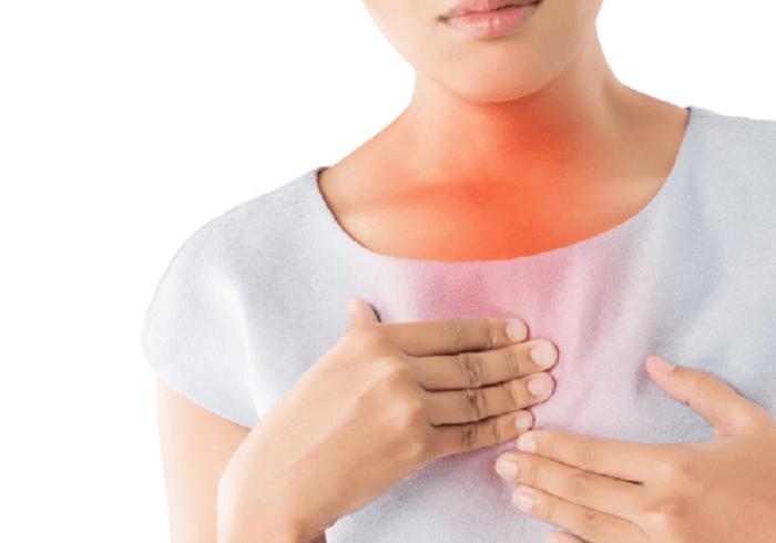 Ợ nóng chính là một biểu hiện của bệnh trào ngược dạ dày thực quản