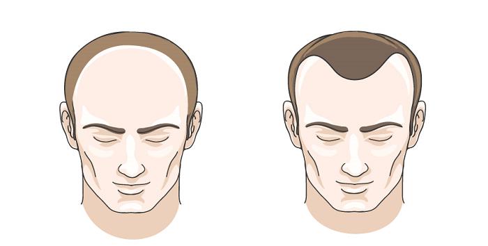 Rụng tóc chữ M và chữ U là 2 kiểu thường thấy ở nam giới