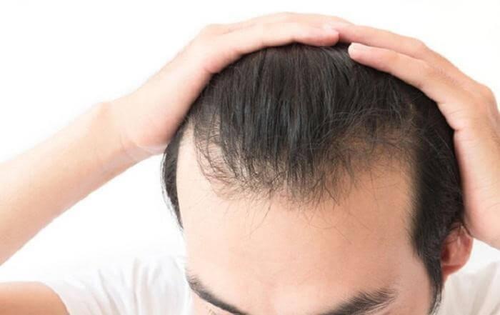 Rụng tóc làm bạn thiếu tự tin trong cuộc sống