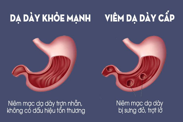 So sánh giữa dạ dạy khỏe mạnh và dạ dày bị viêm cấp