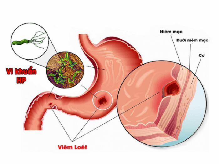 Vi khuẩn HP – thủ phạm chính gây đau dạ dày