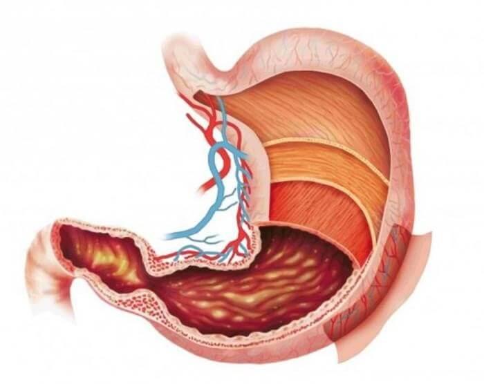 Viêm dạ dày cấp gây những cơn đau đớn bất ngờ do các vết viêm ở vùng niêm mạc dạ dày