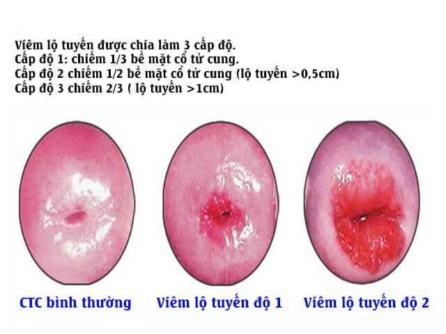Các cấp độ bệnh viêm lộ tuyến