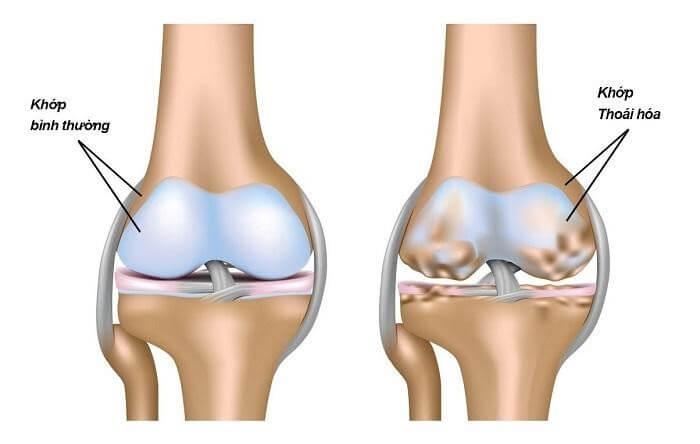Collagen type 2 giúp điều trị hiệu quả các bệnh về xương khớp