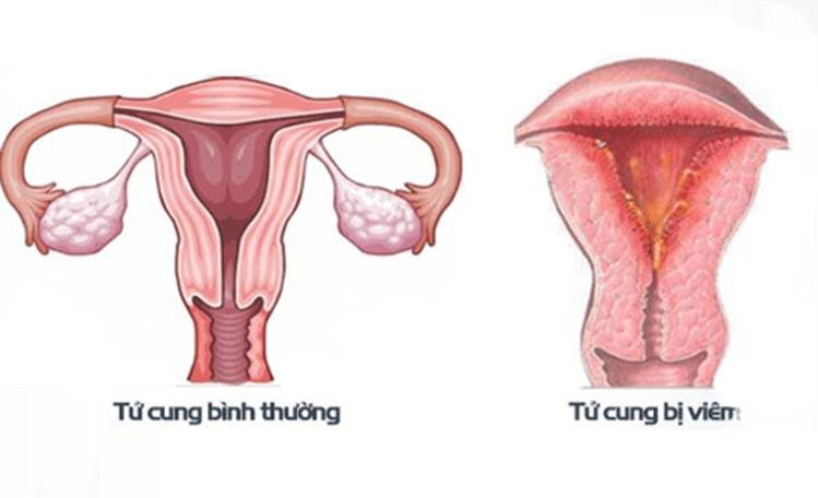 Rong kinh do tử cung bị viêm dẫn đến máu ra nhiều