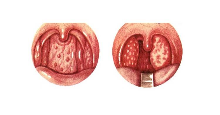 Viêm họng là bệnh gì? Có nguy hiểm không?