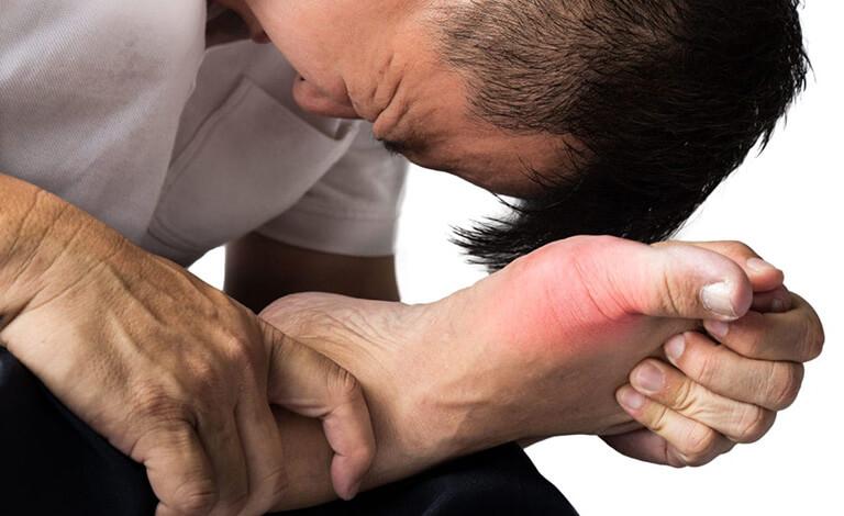 Đau khớp dữ dội là biểu hiện của bệnh gout