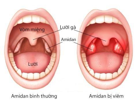 Hình so sánh giữa amidan bình thường và amidan bị viêm