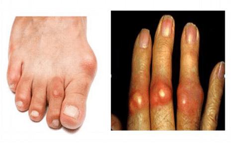 Biểu hiện tay và chân của người bị bệnh gout