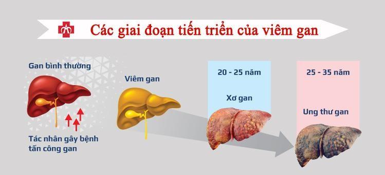 Tùy vào tình trạng của gan mà sẽ có những biểu hiện khác nhau