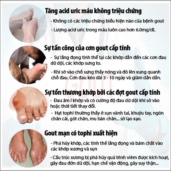 Các triệu chứng qua từng giai đoạn của bệnh Gout