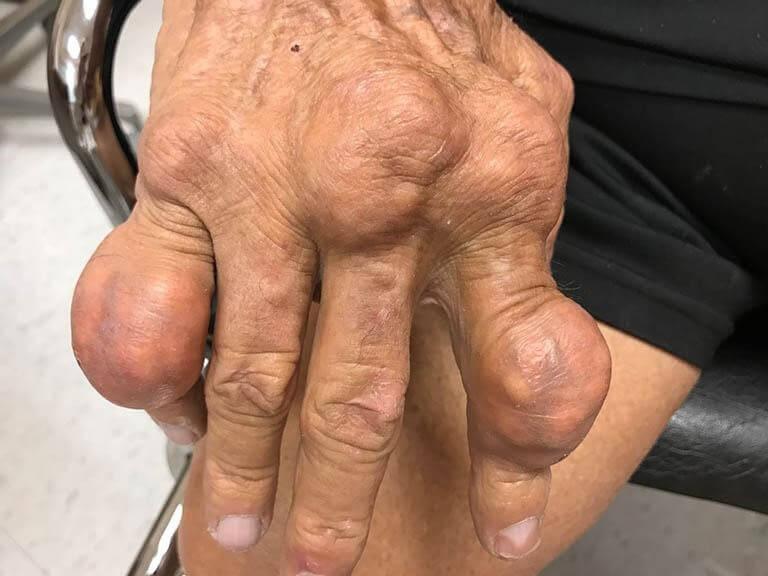Hạt tophi xuất hiện ở giai đoạn gout mạn tính