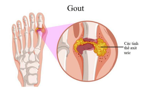 Ngón chân cái thường xuất hiện các cơn đau, sưng nhức