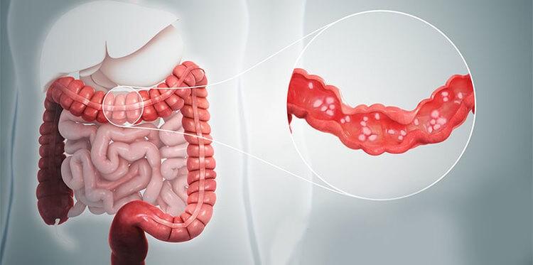 Viêm đại tràng cấp tính là tình trạng viêm niêm mạc đại tràng dẫn đến đau bụng đột ngột, tiêu chảy